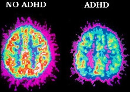 Reduced Cerebral Blood Flow - ADHD